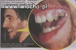 Zęby Maseraka
