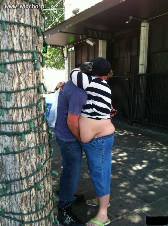 To jakiś pomiar grubości tkanki tłuszczowej?