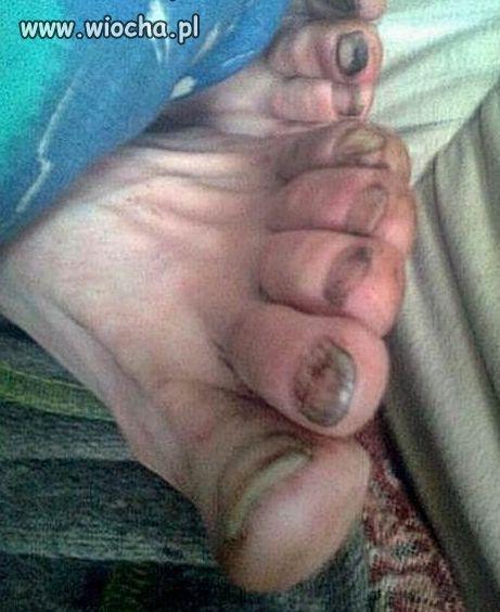 Zacne paznokcie