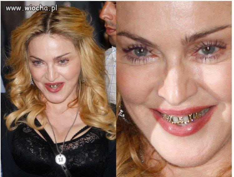 Madonna i jej seksowne zęby.