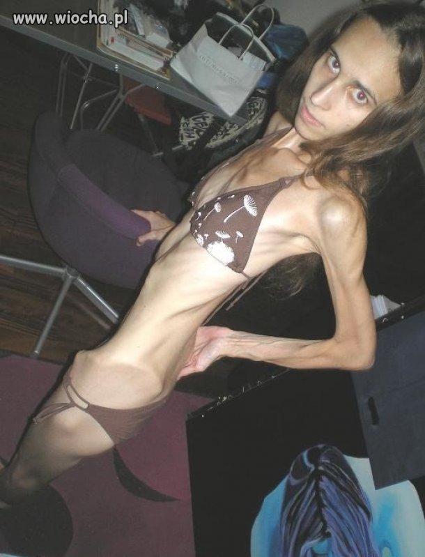 Dlaczego anorektyczka jest smutna???