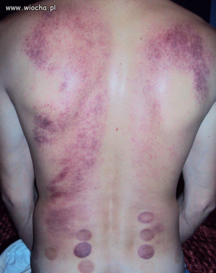 Masaż rehabilitacyjny  kręgosłupa za 50zł