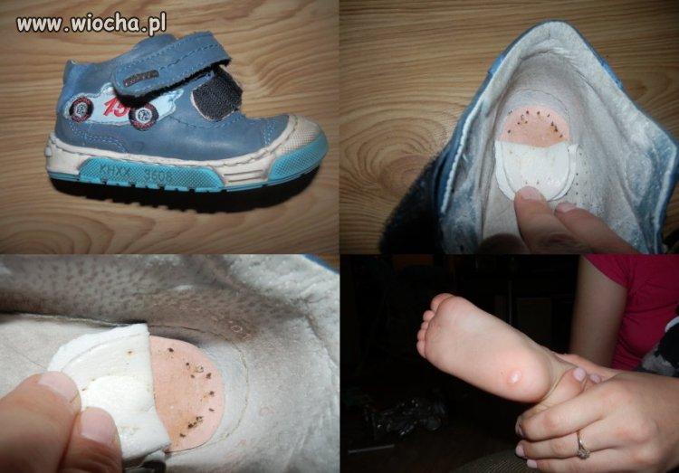 W butach były gwoździe. Okaleczyły stopę dziecka