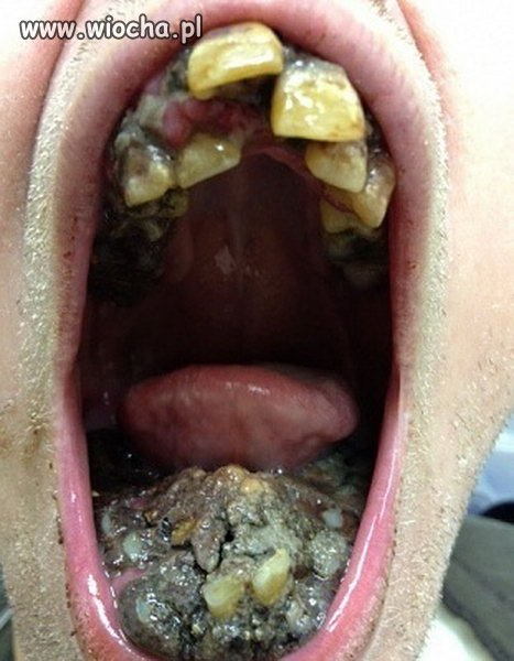 Koszmar dentysty