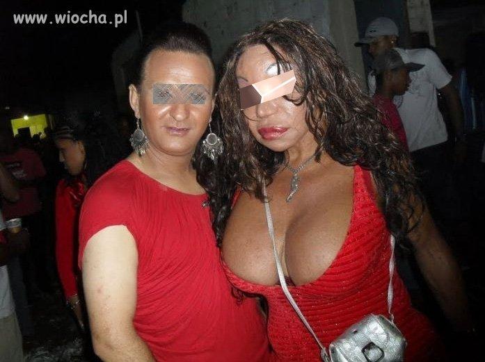 Botox Fail