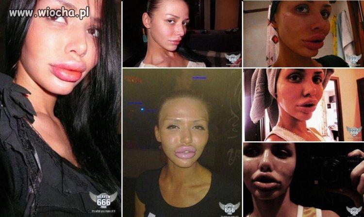 Operacje plastyczne ust