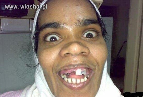 Kobieta bez zęba