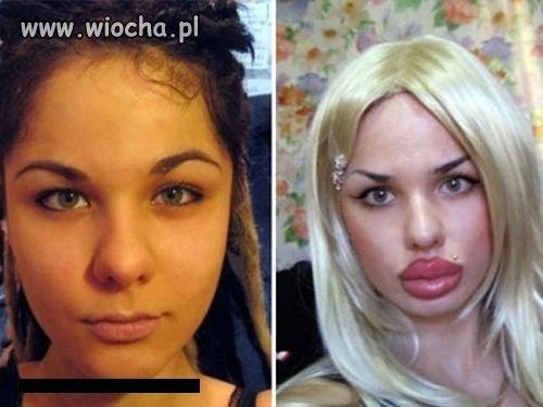 Przed i po.