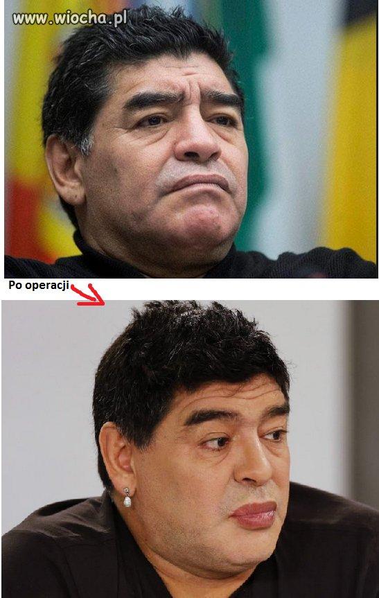 Maradona po operacji plastycznej