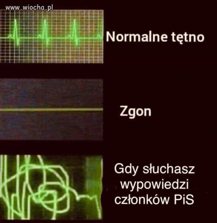 Normalne tętno